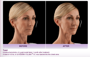 Voluma Before and After 3